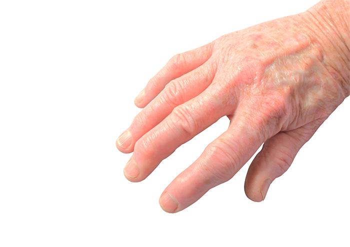Psoriatic Arthritis Causes And Symptoms University Health News