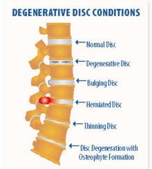 disc degeneration disease