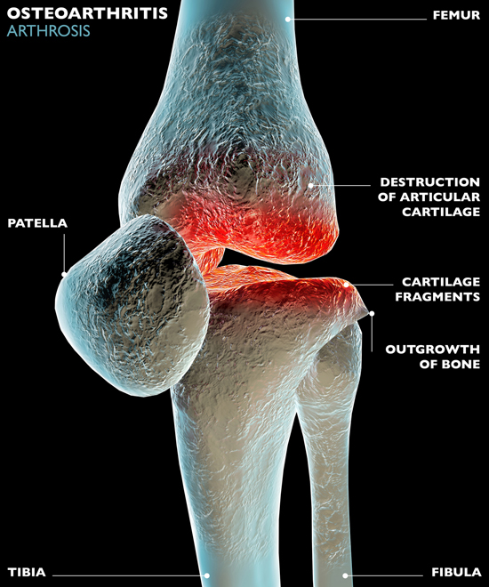 Osteoarthritis, where the cushioning cartilage wears away and creates bone-on-bone friction, is the most common knee-related affliction.