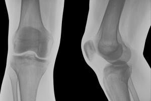 A knee x-ray shown from front and side views.
