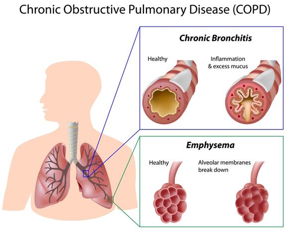 COPD diagram