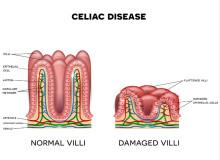 what is celiac disease