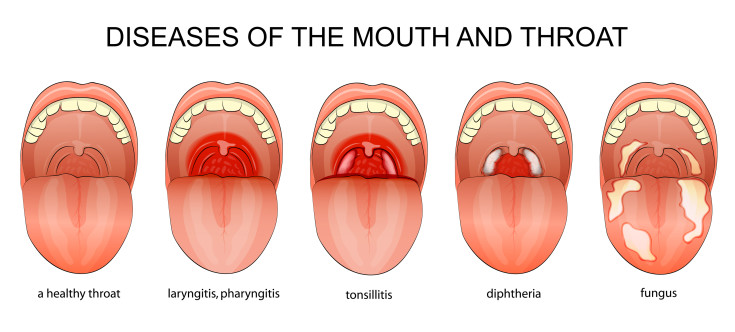 Mouth and throat disease