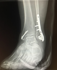 broken ankle front view
