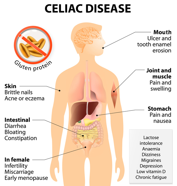 How does celiac disease affect us? As the chart here shows, it can wreak havoc on everything from the mouth to joint pain to intestinal and stomach issues to skin problems.