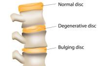 degenerative disc pain