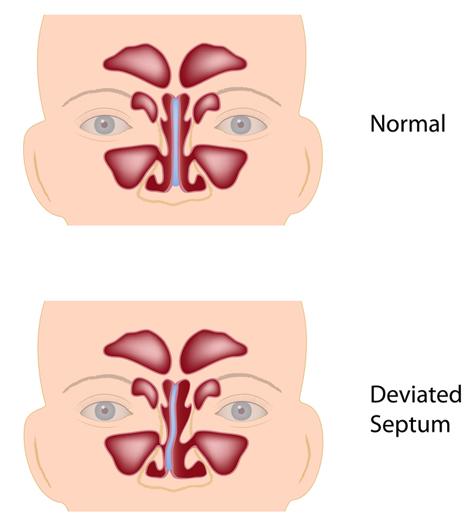 Deviated Septum How To Manage Symptoms University Health News
