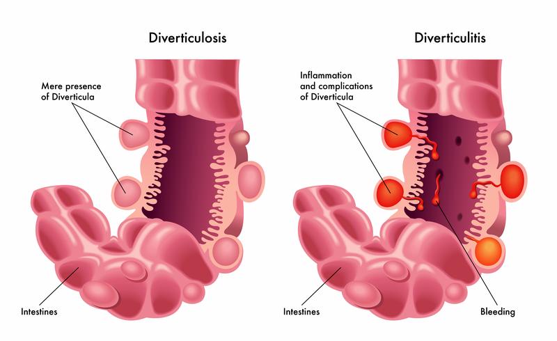 Diverticulitis prosztatitis