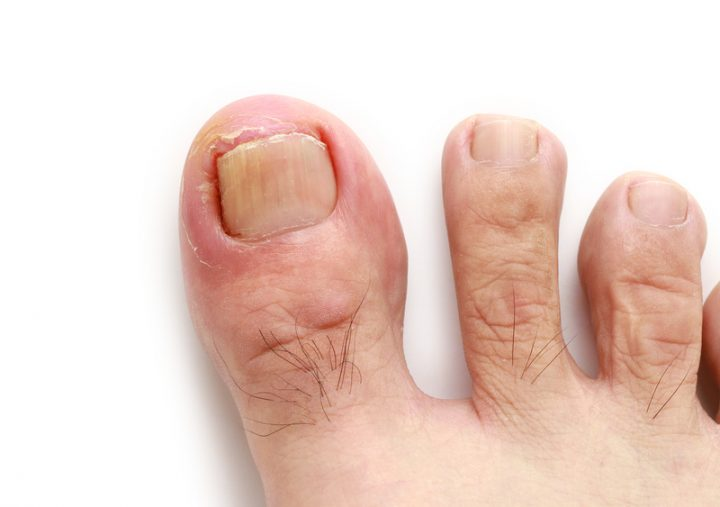 Ingrown Toenail? When to Treat It at Home and When to See Your ...