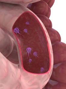 giardia parasite