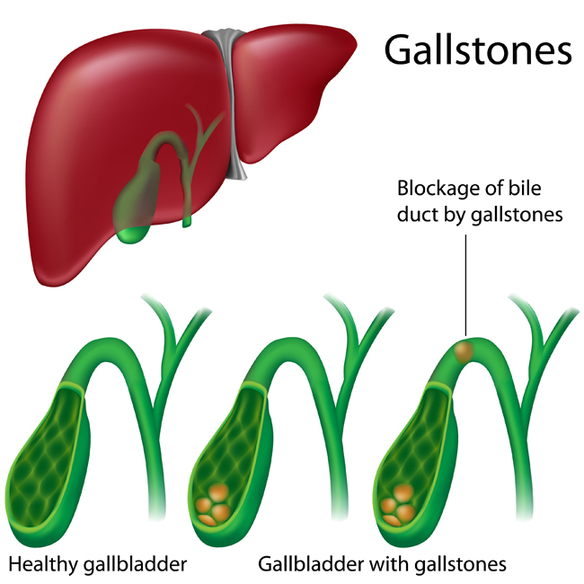 What Does a Gallbladder Feel Like? - University ... Gallbladder Pain Location Diagram on