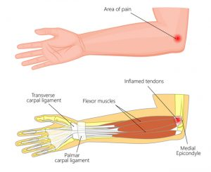 golfer's elbow