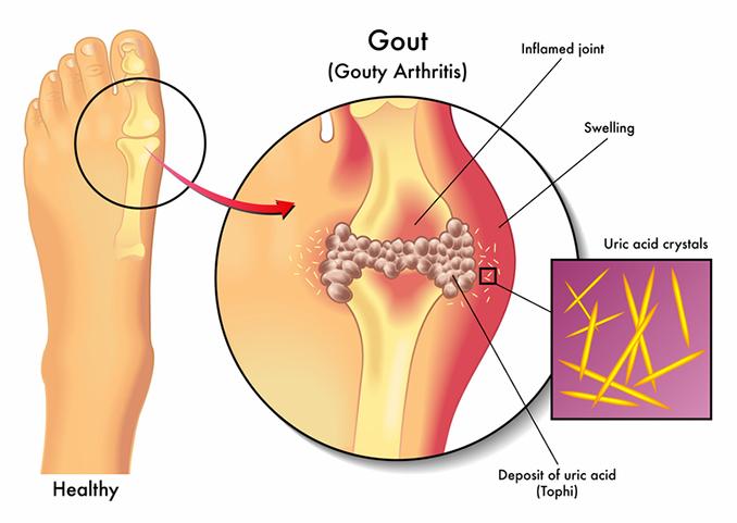 gout in foot