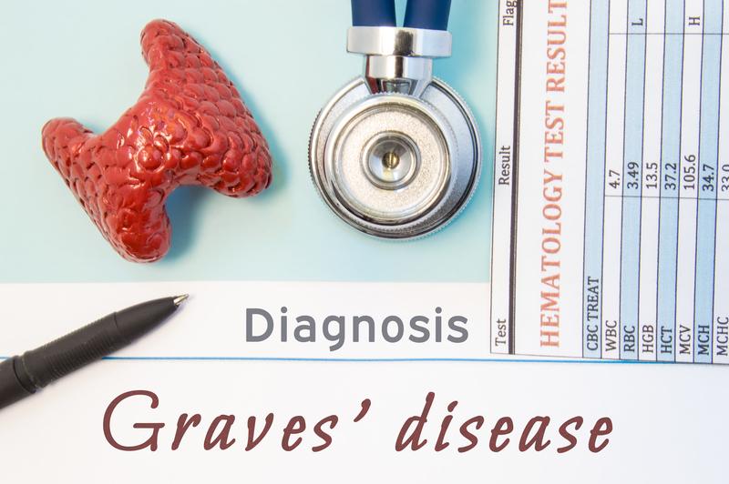 Graves Disease Do These Symptoms Sound Familiar University