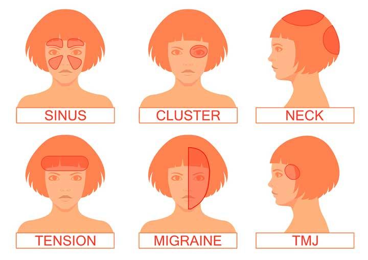headache location