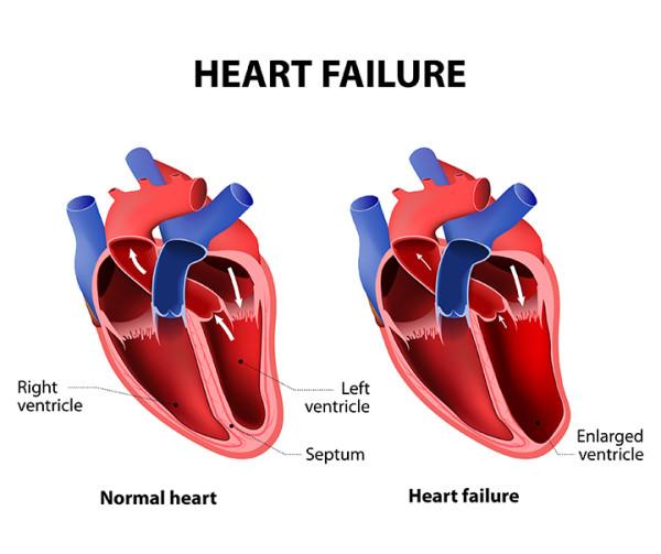 heart failure symptoms