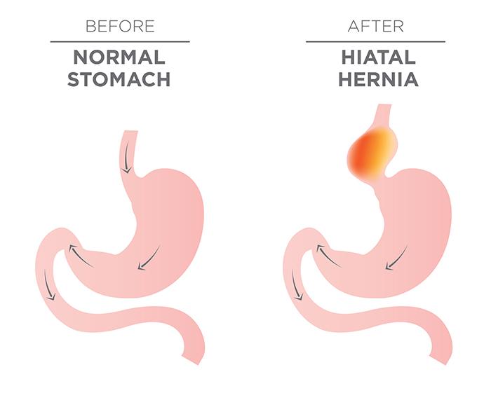 hiatal-hernia.jpg