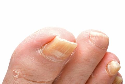 remedies for toenail fungus