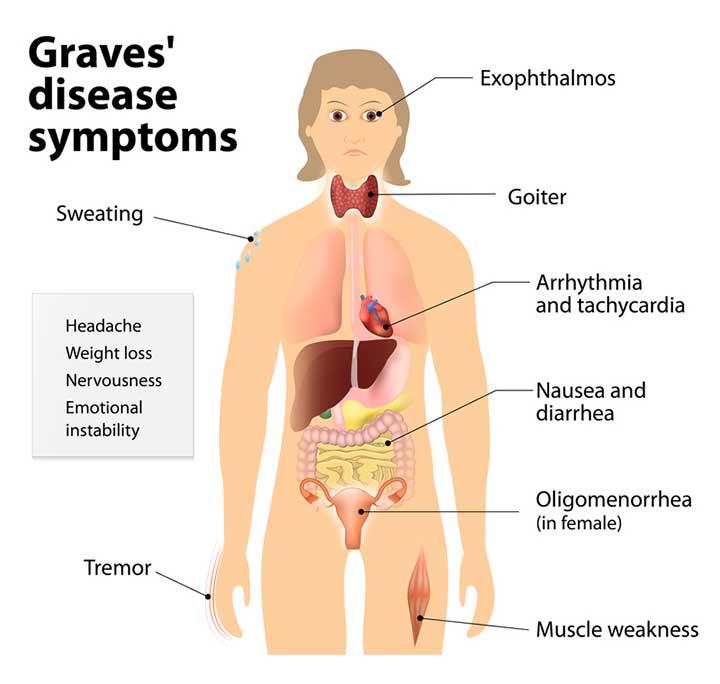 Hyperthyroidism Natural Treatment for Graves' Disease