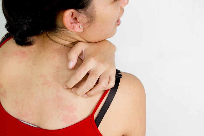 Is Skin Cancer Itchy? - University Health News