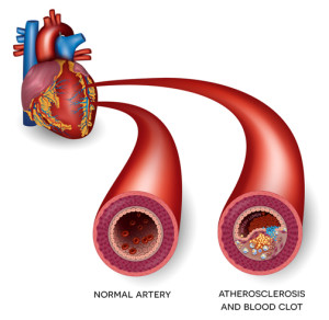 mild heart attack symptoms — blocked artery