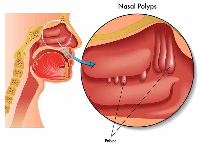 Prostatitis polip