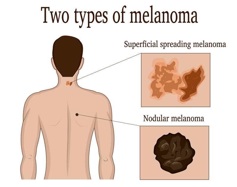What Is Nodular Melanoma? - University Health News