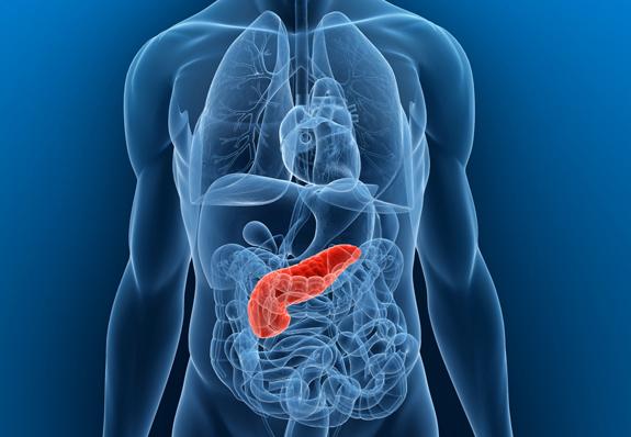 (PDF) Az autoimmun pancreatitis   Peter Igaz - lencserendeles.hu