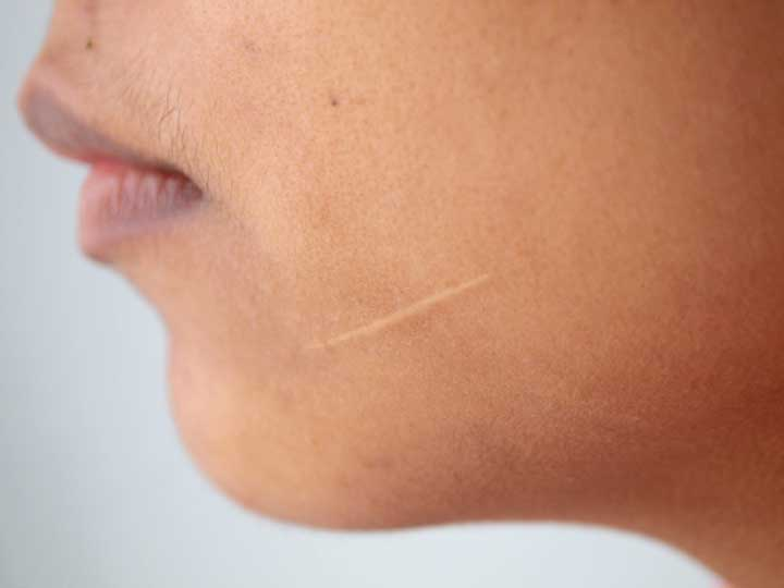 Scar Treatment That Works: 17 Ways to Reduce (and Prevent) Unsightly