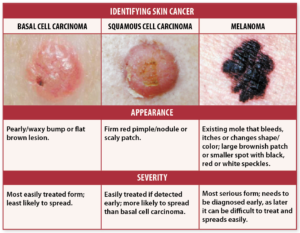 skin cancer signs