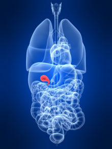 treatment of gallstones