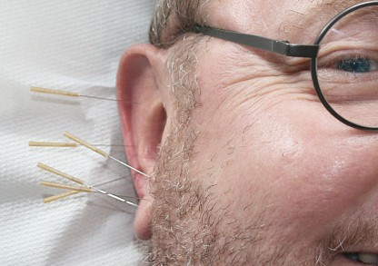 Acupuncture: A Natural Blood Pressure Reducer