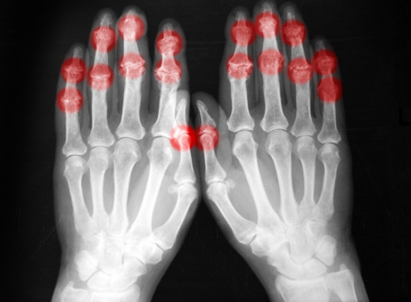 Treatment Options for Arthritis Pain in Hand Treatment Options for Arthritis Pain in Hand new images