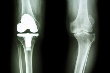 Knee Replacement Alternatives vs. Knee Surgery: Explore Your Options for Osteoarthritis