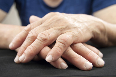 What Is Arthritis? It Could Be Gout, Rheumatoid Arthritis, or Osteoarthritis