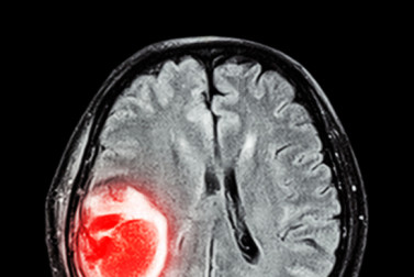 Brain Tumor Symptoms: Not Just in Your Head
