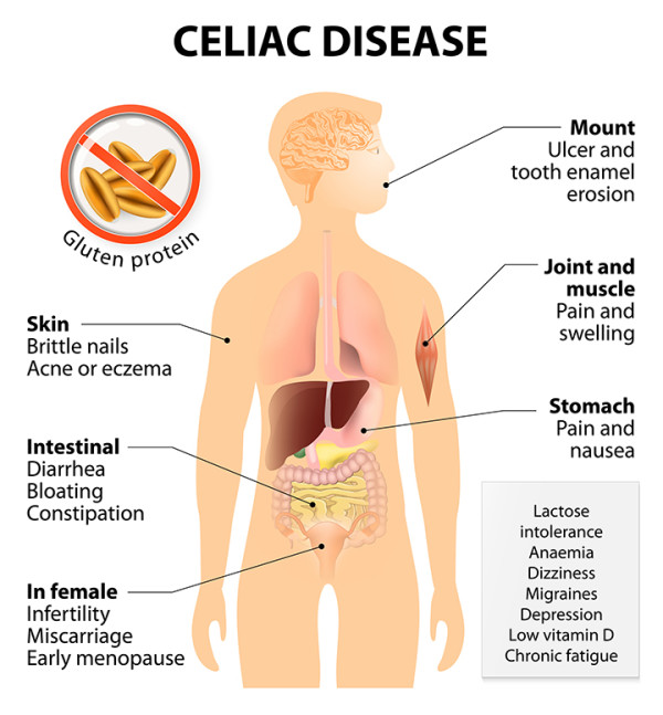 celiac disease symptoms list of 281 ailments university health news small intestine only celiac disease symptoms list