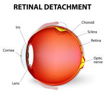 Detached Retina: Symptoms and Treatment