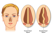 Deviated Septum: Symptoms and Treatments