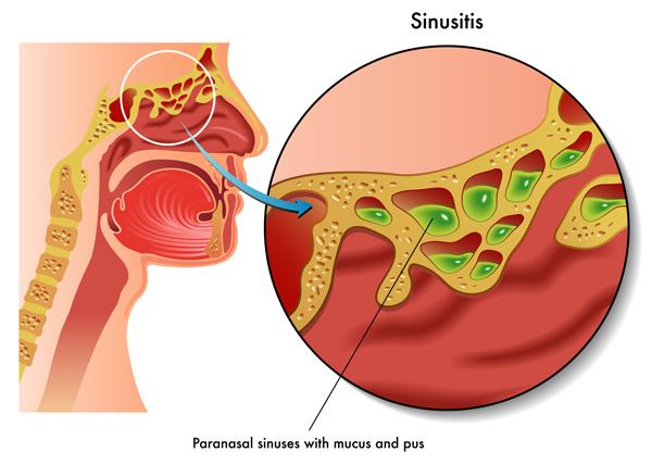 Sinusitis Treatment Where To Turn University Health News