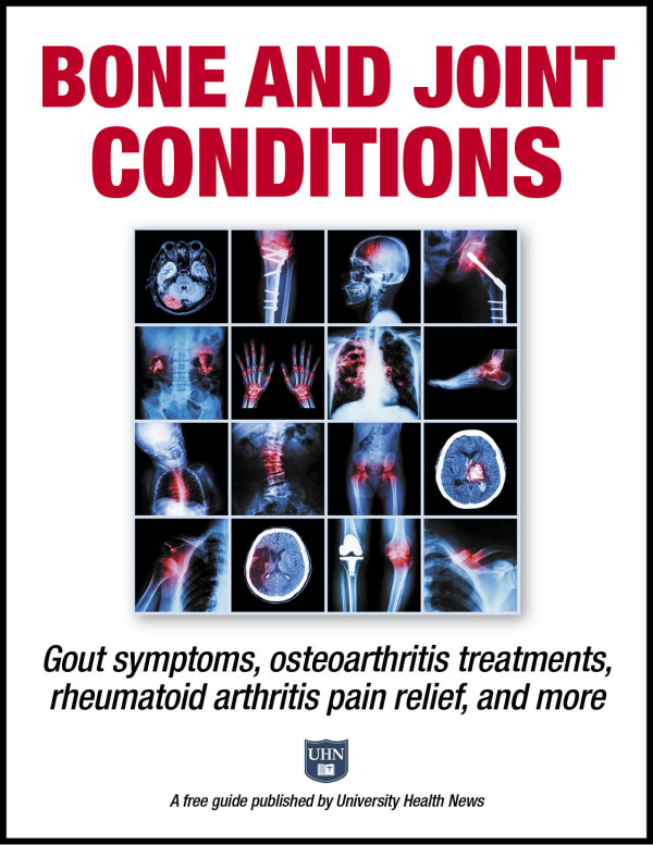 Bone and Joint Conditions: Gout symptoms, osteoarthritis treatments, rheumatoid arthritis pain relief, and more