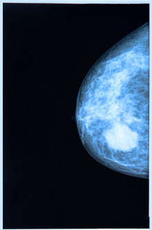 Dense Breast Tissue and Cancer Detection