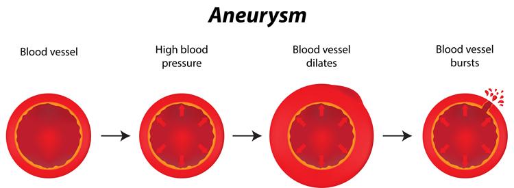 brain aneurysm symptoms - university health news, Human body