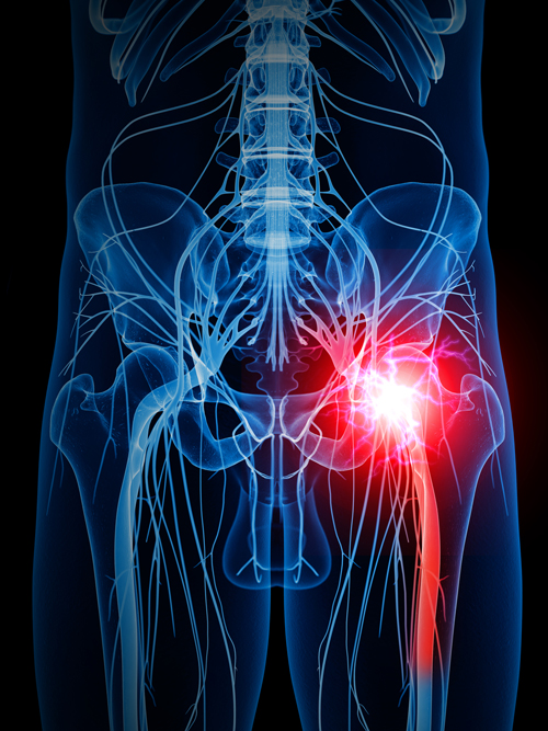 Sciatic Nerve Pain How To Deal With The Effects Of Sciatica In Your