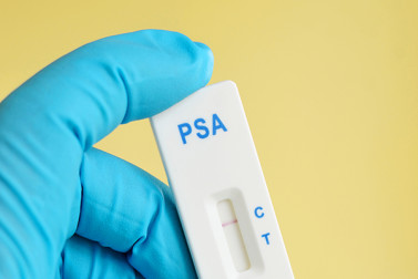 Prostate Cancer Symptoms? PSA Test Is Only Part of the Story
