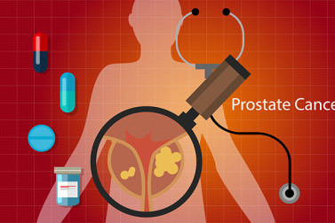Prostate Cancer Survival Rate? Treatments That Increase Your Odds