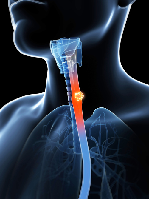 Throat Cancer Symptoms...
