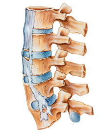 Ankylosing Spondylitis: Treating Arthritis of the Spine