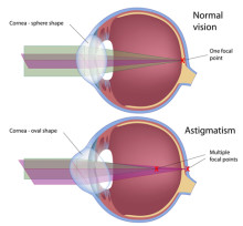 What Is Astigmatism and Why Does it Make Your Vision Blurry?