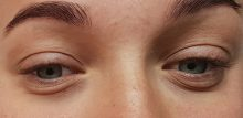 "Bags Under Eyes? These Are Your Best Bets for ""Eye Bag"" Treatment"